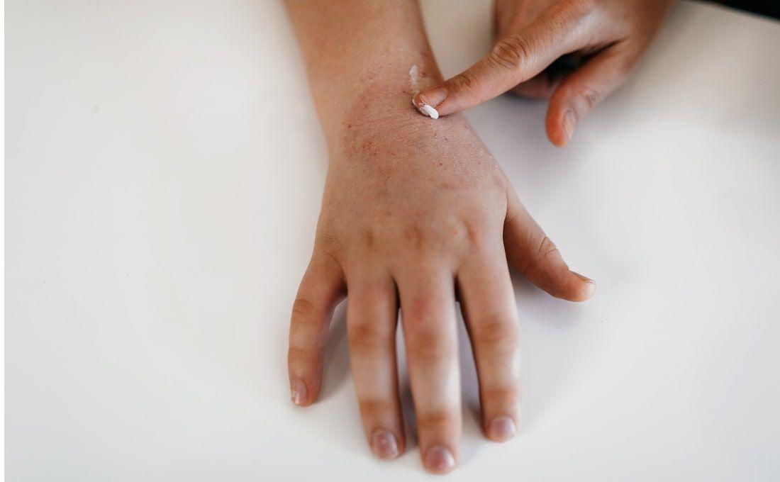 Les conseils de La Roche-Posay pour les peaux sèches, tendance à l'eczéma atopique
