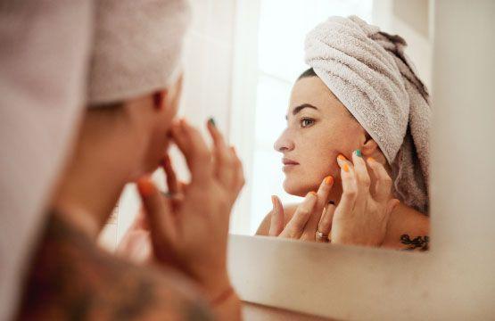 Conseils pour les peaux adultes à imperfections !